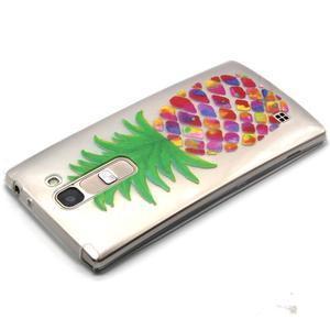 Priehľadný gélový obal na LG G4c - ananás - 3