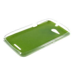 Gélový obal pre Sony Xperia E4g s koženkovým chrbtom - zelený - 3