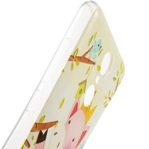 Softy gélový obal pre Xiaomi Redmi Note 3 - zamilované prasátko - 4